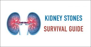 The Kidney Stones Survival Guide