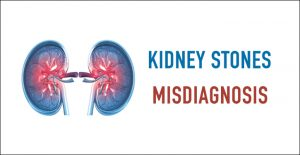 Kidney Stones Misdiagnosis