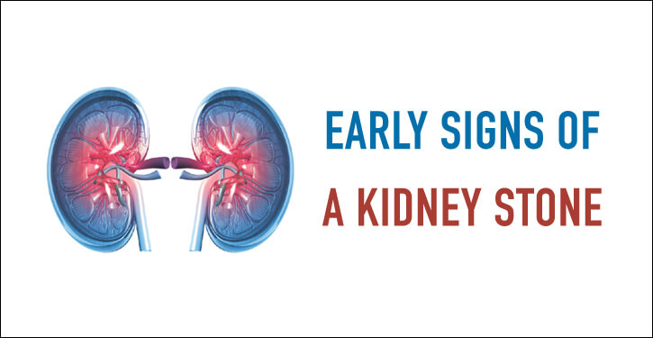 Early Signs of a Kidney Stone